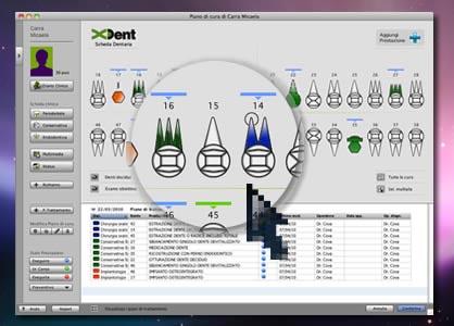 titolone f2 ll team di sviluppo di XDent annuncia la disponibilità di XDent 4